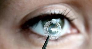 消息称国产人工角膜将在今年 6 月